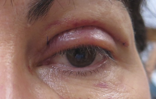 Post-operative Guidelines for Eyelid Surgery | Saul Rajak Ophthalmology