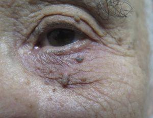Benign lesions 1