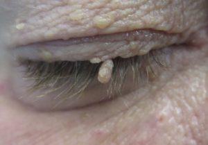 Benign lesions 2