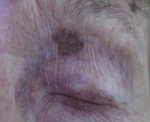 Benign lesions 3