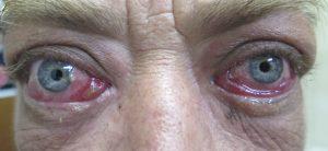 Thyroid Eye Disease And Orbital Decompression Saul Rajak